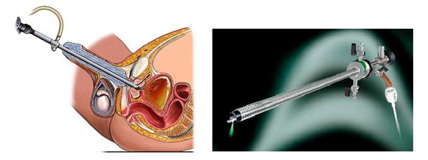 Предстательная железа увеличена структура неоднородная